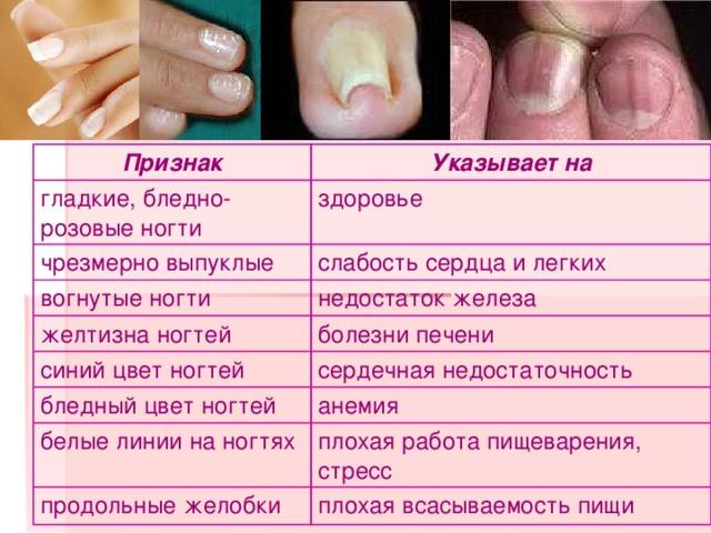 здоровье по ногтям рук таблица рисунок