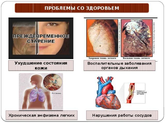 ПРОБЛЕМЫ СО ЗДОРОВЬЕМ Ухудшение состояния кожи Воспалительные заболевания органов дыхания Хроническая эмфизема легких Нарушения работы сосудов