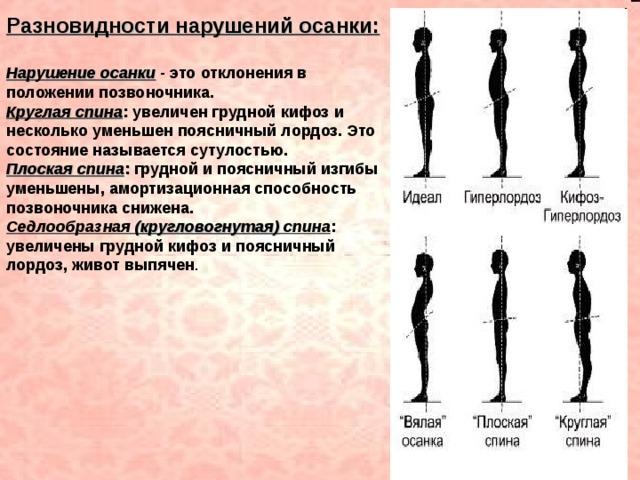 НАРУШЕНИЕ ОСАНКИ Клушина Т.Е. Рефлексотерапевт, остеопат ...   480x640