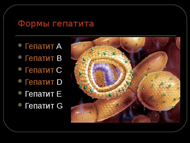 Формы гепатита Гепатит А Гепатит В Гепатит С Гепатит D Гепатит Е Гепатит G