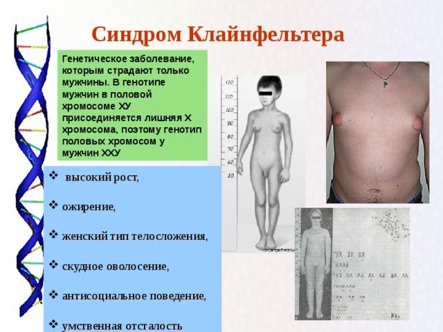 Синдром Клайнфельтера  Генетическое заболевание, которым страдают только мужчины. В генотипе мужчин в половой хромосоме ХУ присоединяется лишняя Х хромосома, поэтому генотип половых хромосом у мужчин ХХУ  высокий рост,  ожирение,  женский тип телосложения,   скудное оволосение,   антисоциальное поведение,   умственная отсталость