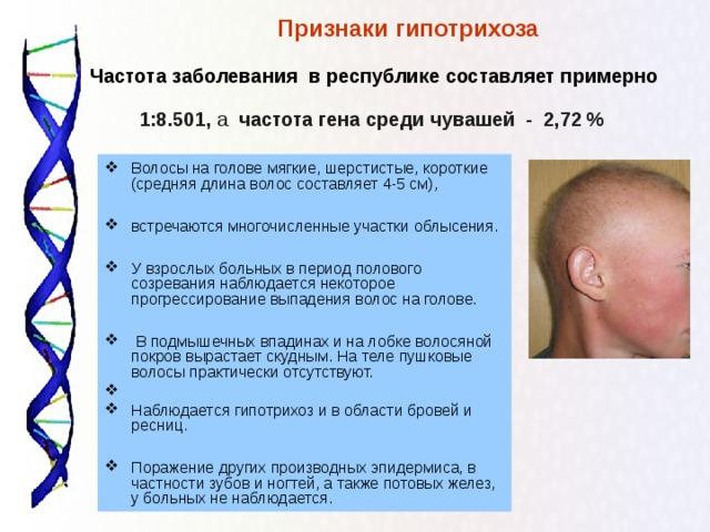 Признаки гипотрихоза    Частота заболевания в республике составляет примерно 1:8.501, а  частота гена среди чувашей - 2,72 % Волосы на голове мягкие, шерстистые, короткие (средняя длина волос составляет 4-5 см),  встречаются многочисленные участки облысения.  У взрослых больных в период полового созревания наблюдается некоторое прогрессирование выпадения волос на голове.   В подмышечных впадинах и на лобке волосяной покров вырастает скудным. На теле пушковые волосы практически отсутствуют. Наблюдается гипотрихоз и в области бровей и ресниц.  Поражение других производных эпидермиса, в частности зубов и ногтей, а также потовых желез, у больных не наблюдается.