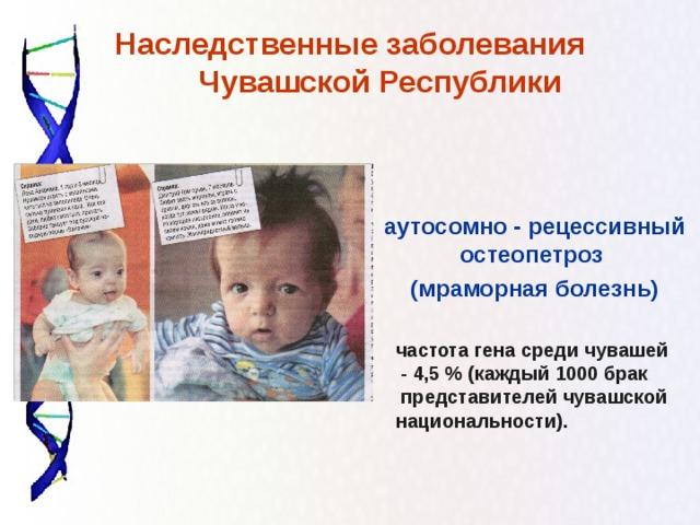 Наследственные заболевания Чувашской Республики   аутосомно - рецессивный остеопетроз (мраморная болезнь) частота гена среди чувашей  - 4,5 % (каждый 1000 брак  представителей чувашской национальности ) .
