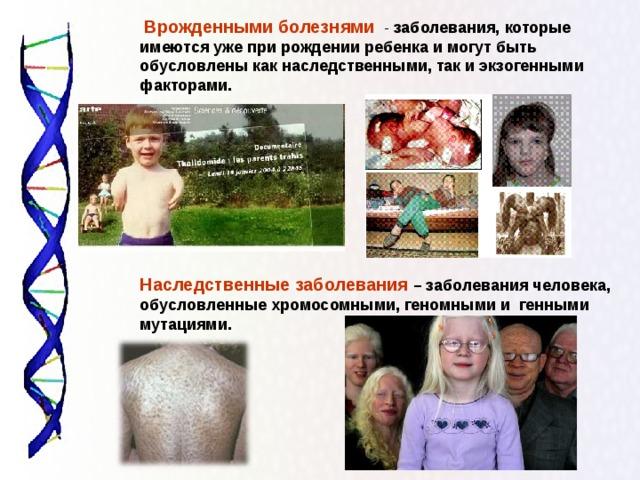 Врожденными болезнями - заболевания, которые имеются уже при рождении ребенка и могут быть обусловлены как наследственными, так и экзогенными факторами.      Наследственные заболевания  – заболевания человека, обусловленные хромосомными, геномными и генными мутациями.