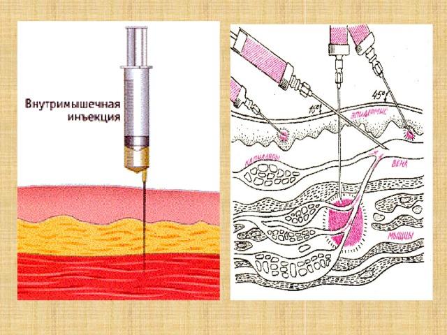 современная картинки выполнения внутримышечной инъекции ранее писал источниках