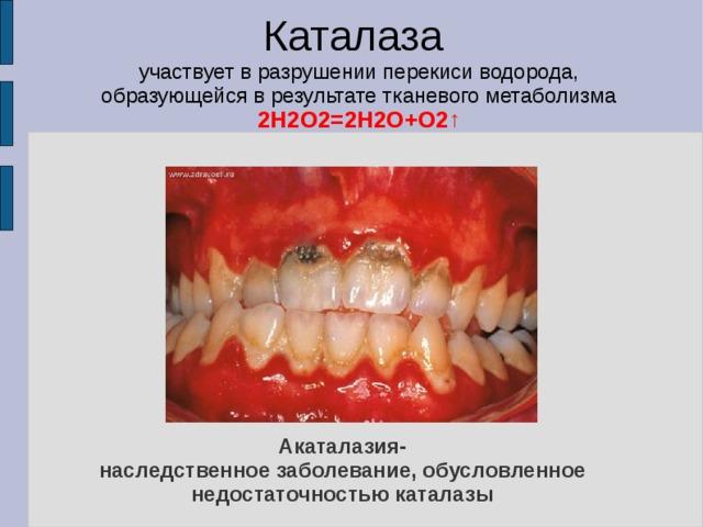 Каталаза участвует в разрушении перекиси водорода, образующейся в результате тканевого метаболизма 2H2O2=2H2O+O2 ↑  Акаталазия-  наследственное заболевание, обусловленное недостаточностью каталазы