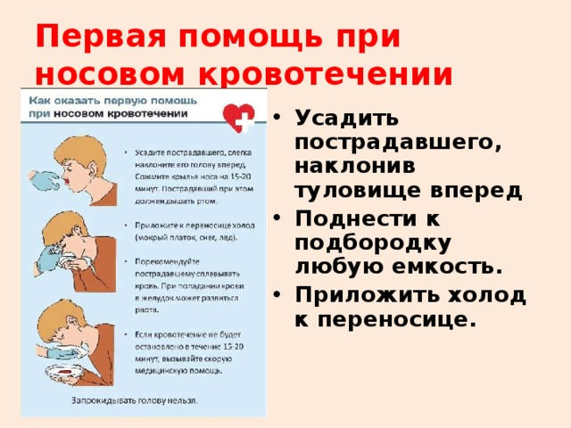 Картинки оказания первой помощи при носовом кровотечении