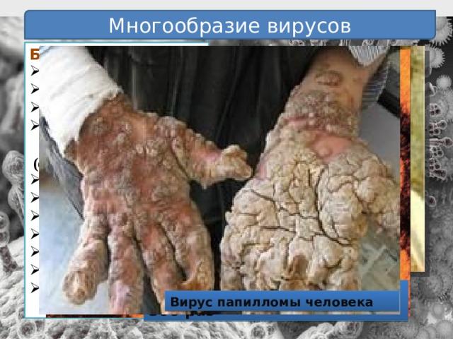Многообразие вирусов Болезни человека:  свинка грипп оспа некоторые онкологические  (опухолевые) болезни желтая лихорадка бешенство полиомиелит энцефалит СПИД бородавки герпес  корь Ребенок, больной оспой Человек, больной герпесом Вирус гриппа увеличен в 300 раз Вирус папилломы человека