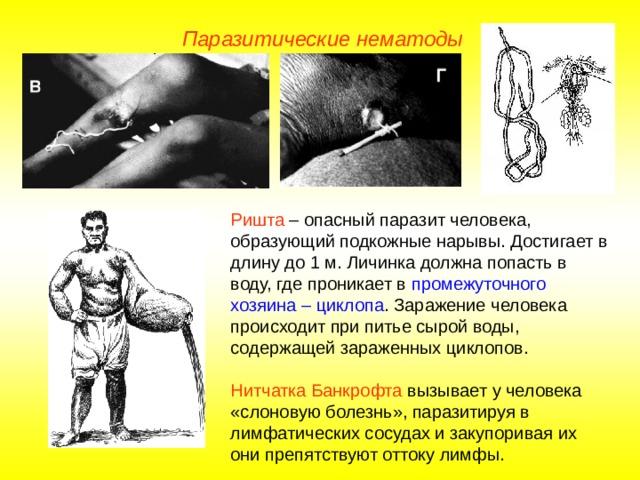 Паразитические нематоды Ришта – опасный паразит человека, образующий подкожные нарывы. Достигает в длину до 1 м. Личинка должна попасть в воду, где проникает в промежуточного хозяина – циклопа . Заражение человека происходит при питье сырой воды, содержащей зараженных циклопов. Нитчатка Банкрофта вызывает у человека «слоновую болезнь», паразитируя в лимфатических сосудах и закупоривая их они препятствуют оттоку лимфы.