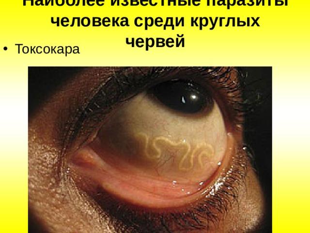 Наиболее известные паразиты человека среди круглых червей Токсокара