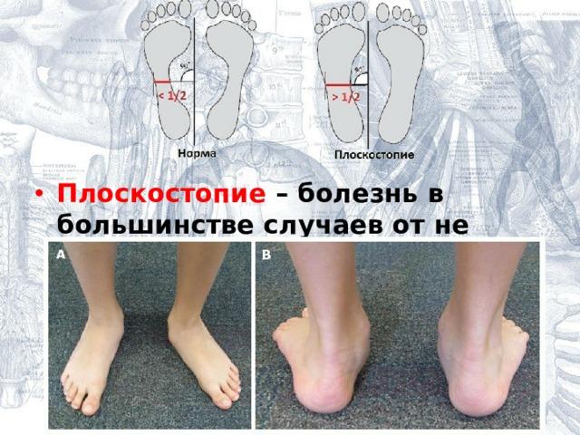 Плоскостопие – болезнь в большинстве случаев от не качественной обуви.