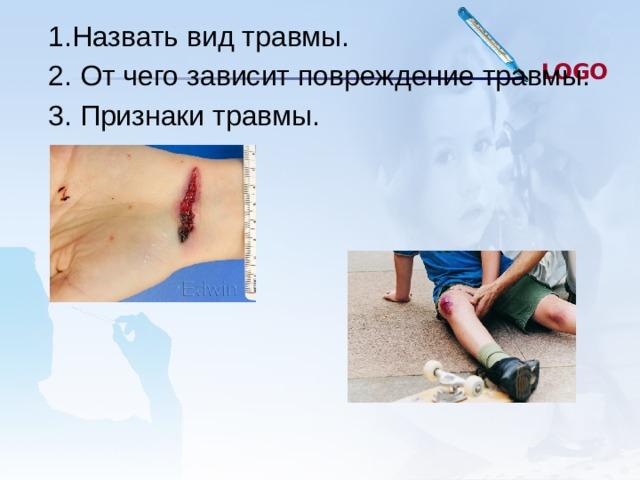 1.Назвать вид травмы. 2. От чего зависит повреждение травмы. 3. Признаки травмы.