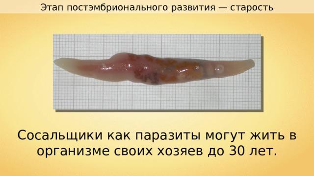 Этап постэмбрионального развития — старость Сосальщики как паразиты могут жить в организме своих хозяев до 30 лет.