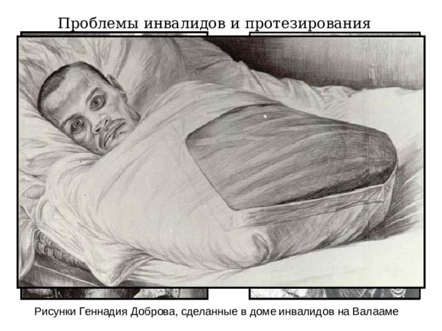 Проблемы инвалидов и протезирования Рисунки Геннадия Доброва, сделанные в доме инвалидов на Валааме