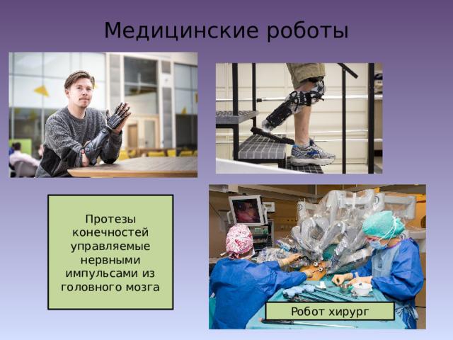 Медицинские роботы   Протезы конечностей управляемые нервными импульсами из головного мозга Робот хирург